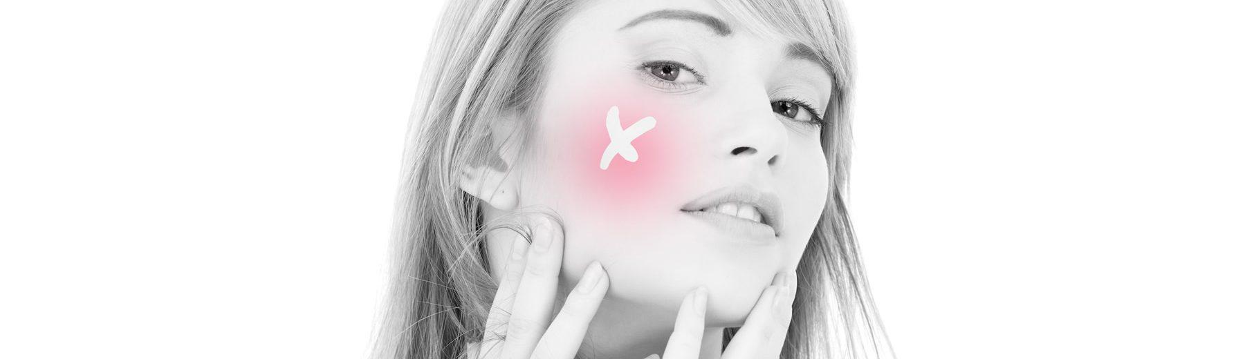 Rosaceas bőr kezelése